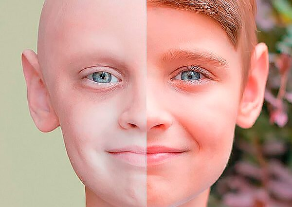 Страшна статистика: скільки українців щороку хворіють на рак і як вберегтись